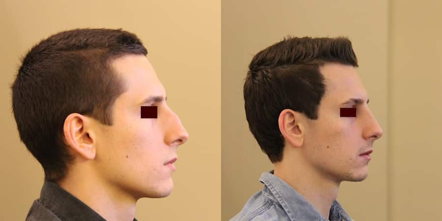 photos-chirurgie-esthetique-paris-visage-rhinoplastie-6