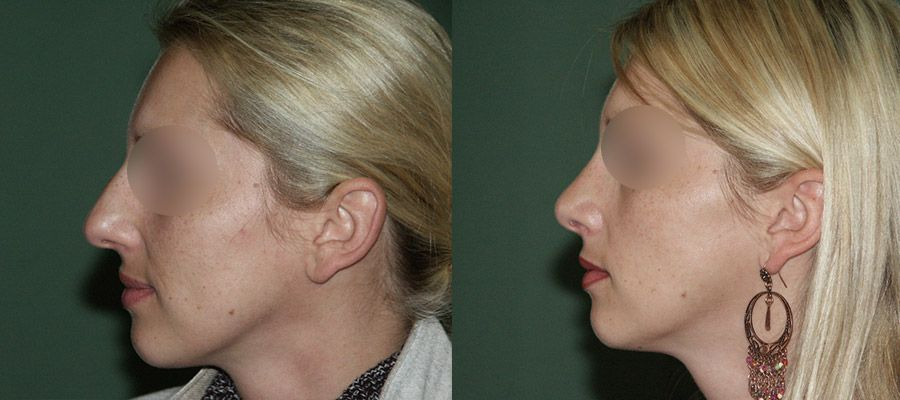 photos-chirurgie-esthetique-paris-visage-rhinoplastie-7