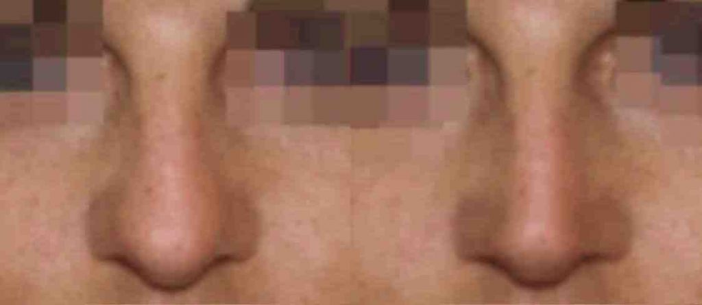 photos-chirurgie-esthetique-paris-visage-rhinoplastie-8