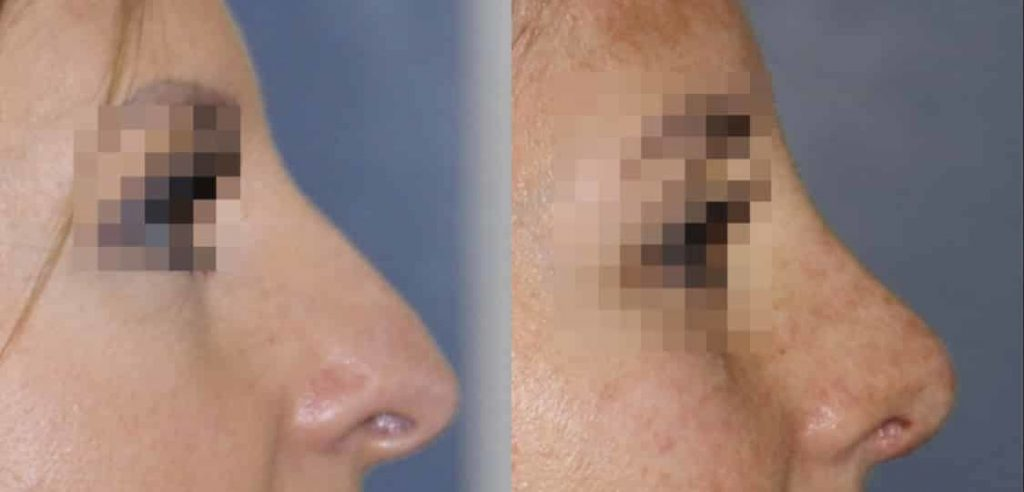 photos-chirurgie-esthetique-paris-visage-rhinoplastie-9