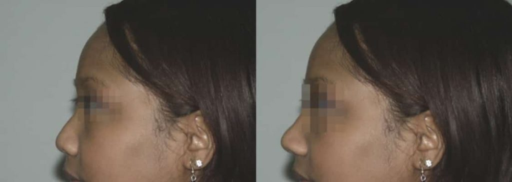 photos-chirurgie-esthetique-paris-visage-rhinoplastie-ethnique-1