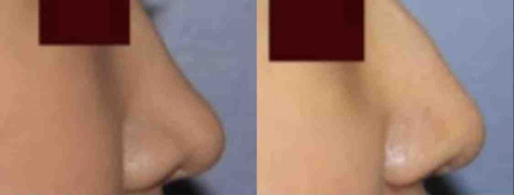 photos-chirurgie-esthetique-paris-visage-rhinoplastie-ethnique-2