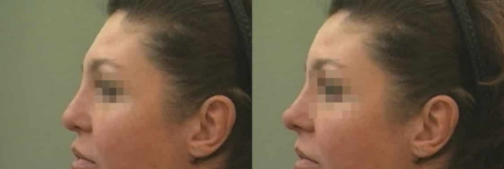 photos-chirurgie-esthetique-paris-visage-rhinoplastie-ethnique-3