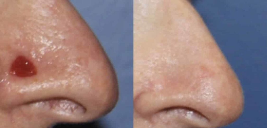 photos-chirurgie-esthetique-paris-visage-rhinoplastie-reconstruction-du-nez-2