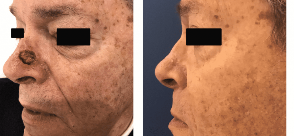 photos-chirurgie-esthetique-paris-visage-rhinoplastie-reconstruction-du-nez-4