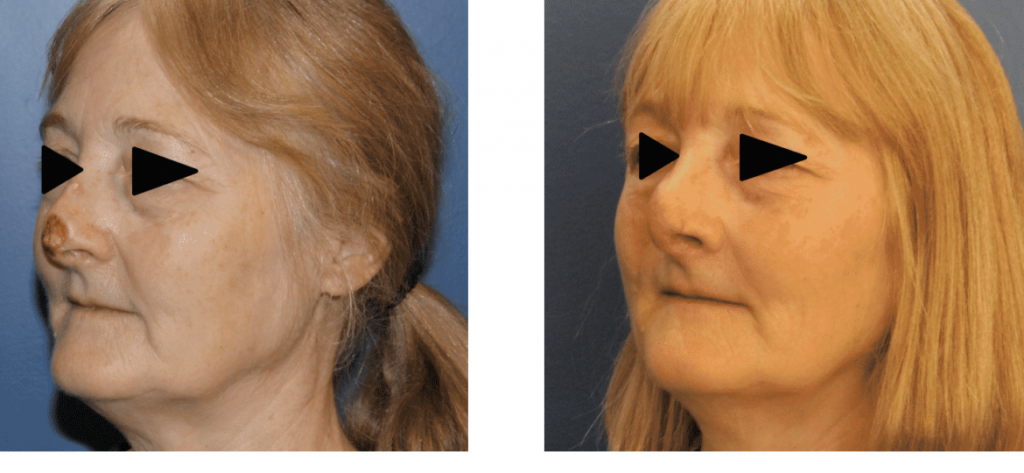 photos-chirurgie-esthetique-paris-visage-rhinoplastie-reconstruction-du-nez-6