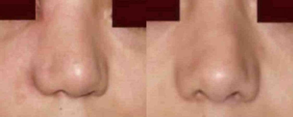 photos-chirurgie-esthetique-paris-visage-rhinoplastie-secondaire-2