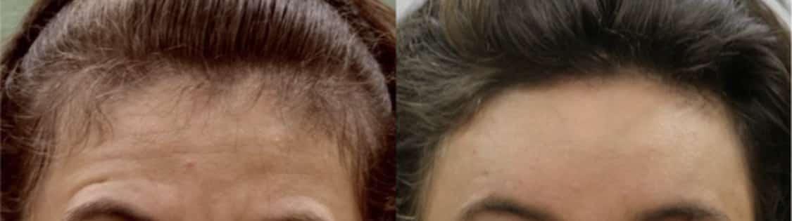 photos de traitement par botox