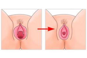 hymenoplastie paris