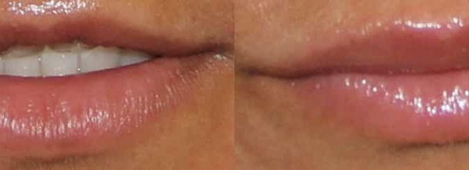 Repulper les lèvres paris