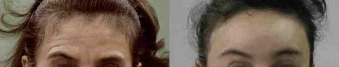 photos de lifting du visage