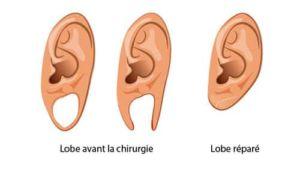 reconstruction des oreilles