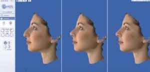 simulation rhinoplastie
