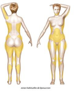 liposuccion paris