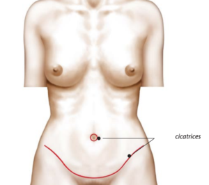 traitement diastasis