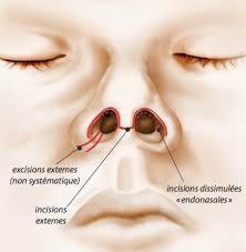 rhinoplastie ouverte