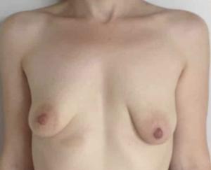 seins tubereux