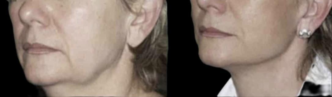 lifting du visage
