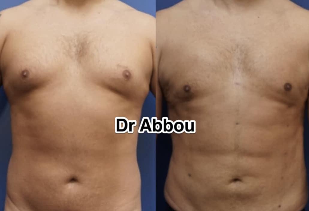 abdominal etching paris