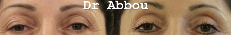 blepharoplastie paris