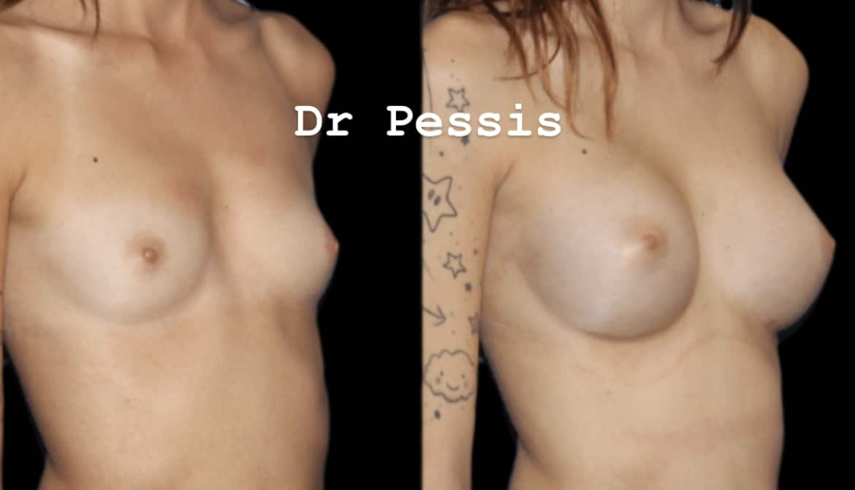 augmentation mammaire paris